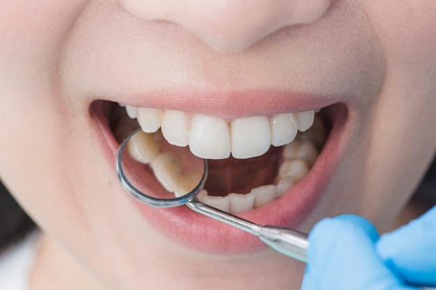 Fiksni zobni aparati in njihove prednosti