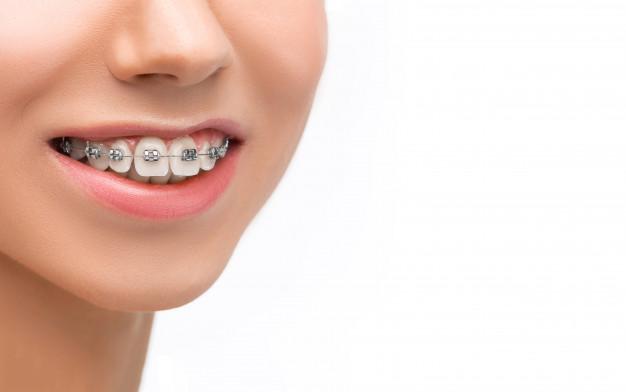 All on 4 odlična rešitev problematičnih zob